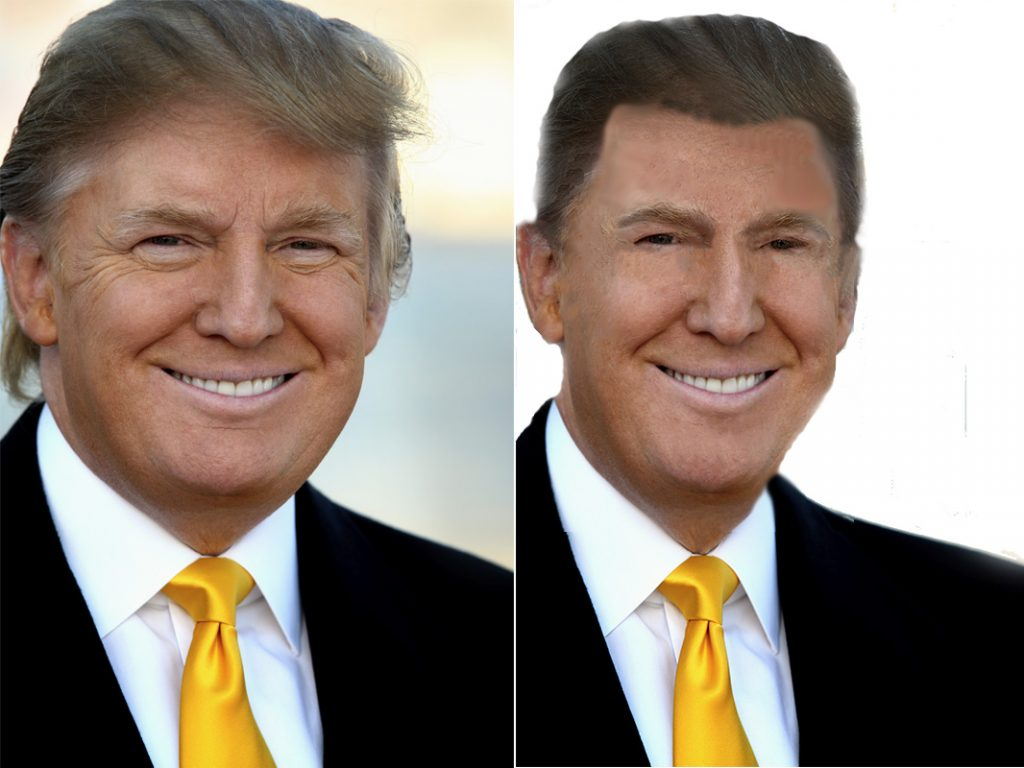 donald-trump-before-after